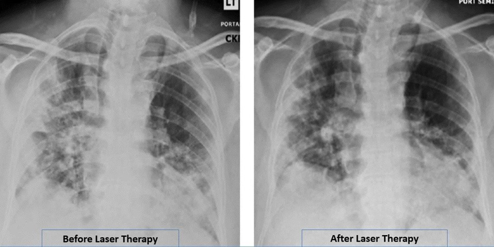 Radiographic Assessment of Lung Edema (RALE) by CXR showed reduced ground-glass opacities and consolidation following PBMT. Lung radiographic score is dependent on extent of involvement based on consolidation or ground-glass opacities for each lung. Total score is the sum of both lungs. RALE score before laser therapy=8. RALE score after laser therapy=5.